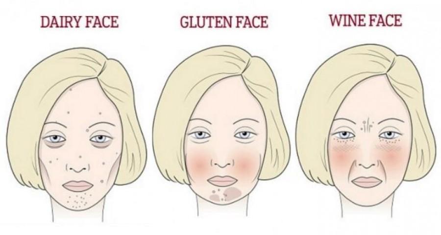 Így látszik arcon a sok glutén, az alkohol és cukor