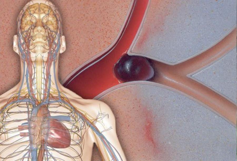 Ha ezeket a tüneteket tapasztalod, életveszélyes vérrög lehet a testedben!