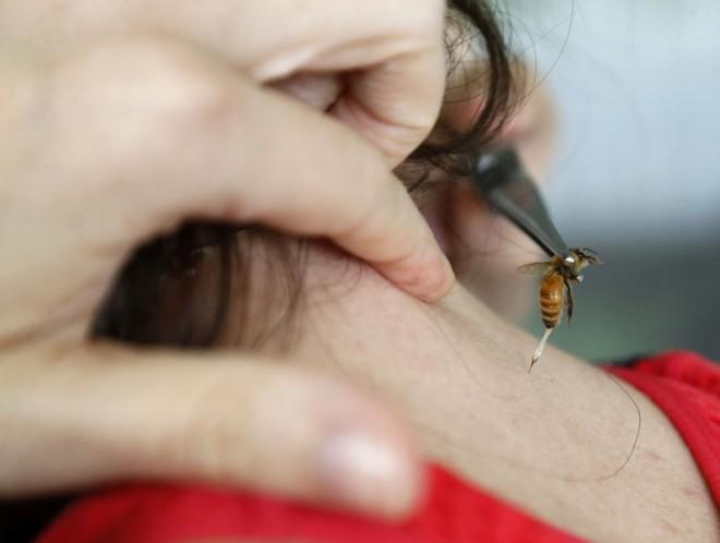 Mégsem jó kalcium tablettát enni, ha megcsíp a méh!