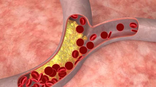 Láss tisztán koleszterin kérdésben! A vörös koleszterinbajnok egy hétköznapi zöldségfélénk. MEG FOGSZ LEPŐDNI MELYIK!