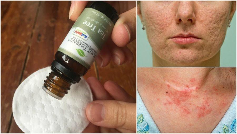 A teafaolaj 10 felhasználási módja, hogy meggyógyítsd a bőröd hibáit és betegségeit