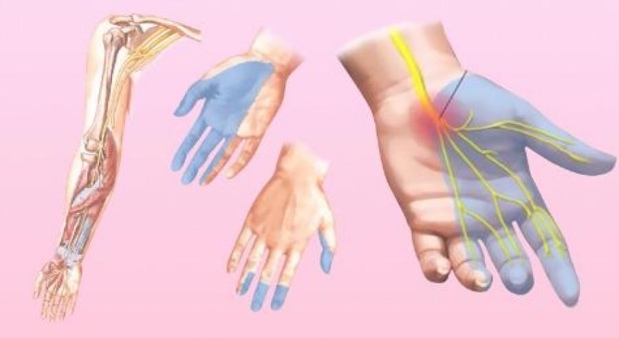 Az ujjaid zsibbadása az egészségi állapotodra utal