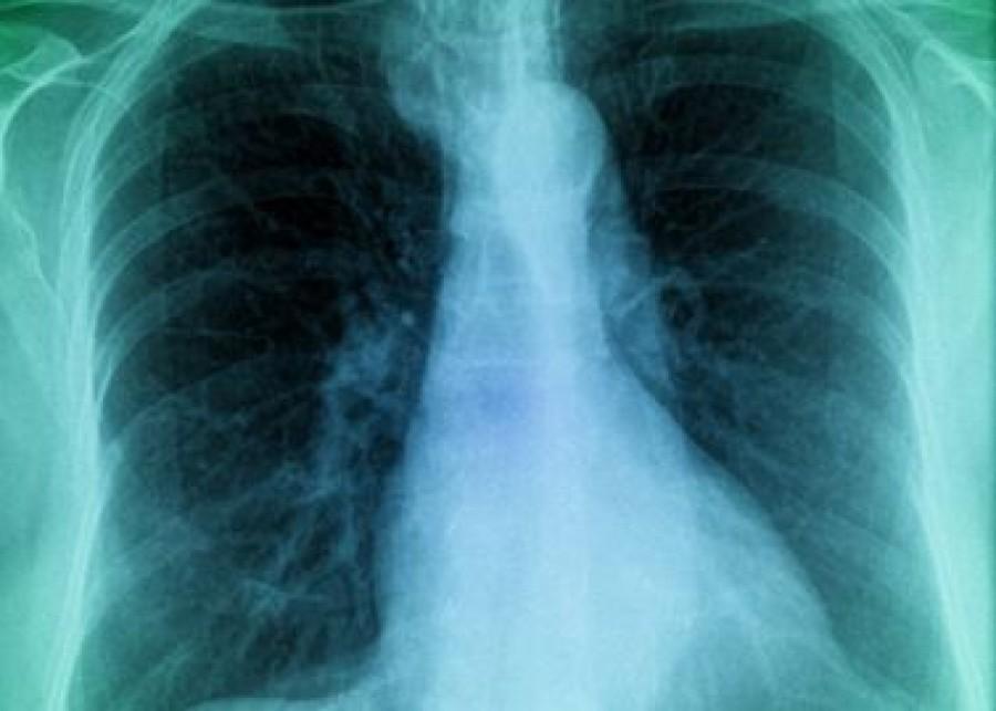 Új tüdőbetegség nevét kell megtanulnunk, ami kegyetlenebb a tüdőráknál