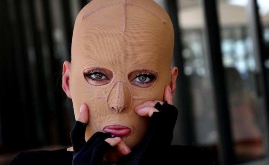 Egy örült felgyújtotta a lányt, ezért 2 évig kellett maszkot viselnie.