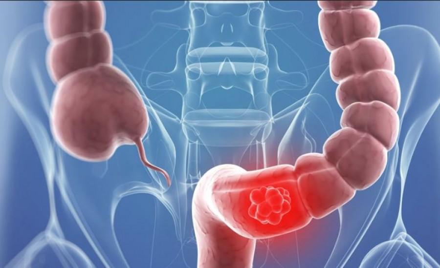 A gasztroenterológus elárulja, hogy vegyük észre időben a vastagbélrák jeleit!