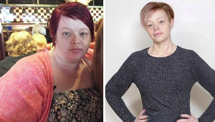 73 kilót fogyott 1 év alatt!