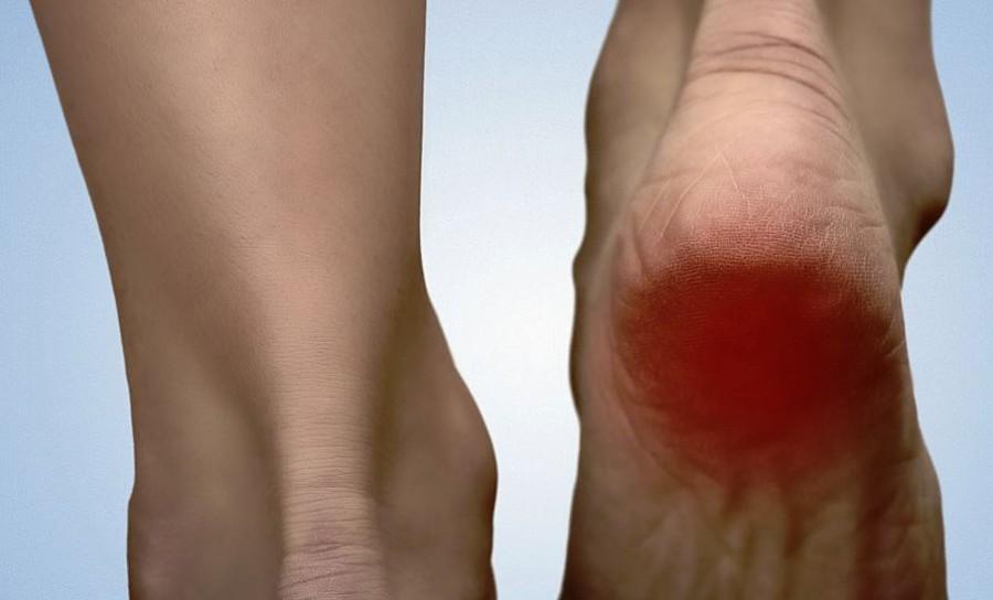 7 megoldás a sarokfájdalom enyhítésére