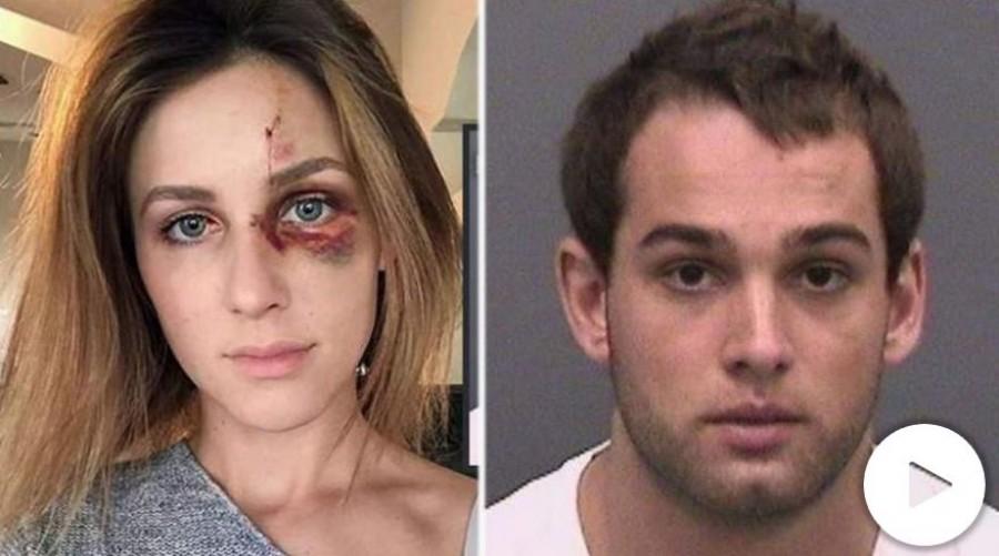 Az ismert sportoló egy neki nem tetsző fotó miatt verte meg a barátnőjét. Megdöbbentő képek!