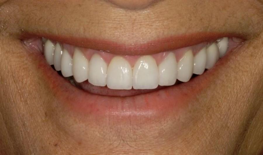 Ezt árulja el a fogad formája a személyiségedről